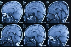Washington DC Traumatic Brain Injury Attorney