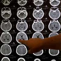 Washington DC Cranial Hemorrhaging in Newborns