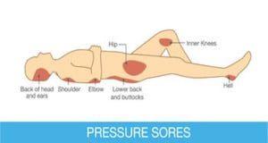 pressuresores