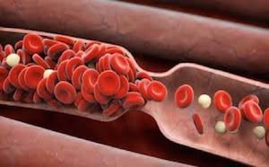 Venous Thrombosis (Blood Clots)
