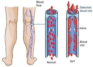 venousthrombosis